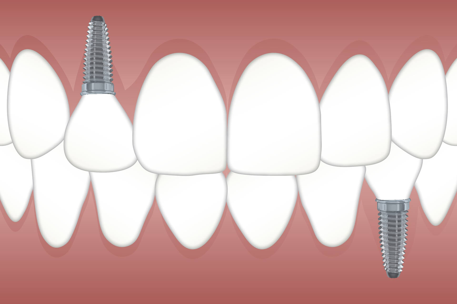 How to Find Dental Insurance-That-Covers-Implants - InsuranceSquare
